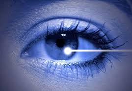 Cirugia reflactiva laser